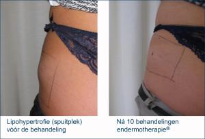 Lipohypertrofie (spuitplekken), foto voor en na behandeling